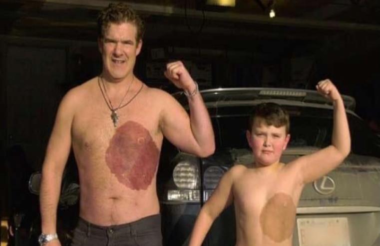 Pai tatua no seu corpo marca de nascença do Filho